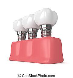 3d render of dental implants in gums