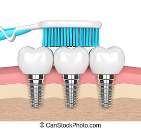 3d render of dental implants with toothbrush