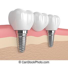 3d render of implants supported dental bridge