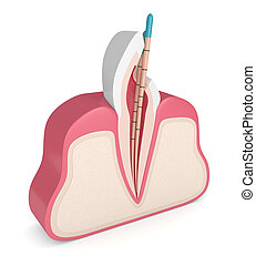 3d render of incisor tooth with gutta percha