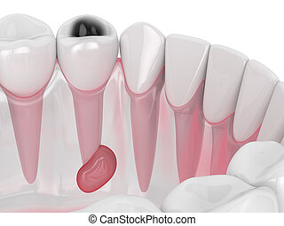 3d render of jaw with tooth cavity and cyst