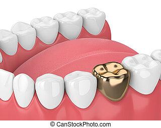 3d render of teeth with dental golden crown restoration