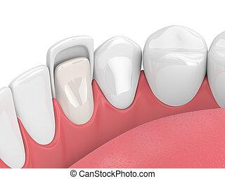 3d render of teeth with veneer over white