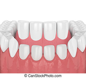 3d render of teeth with veneers