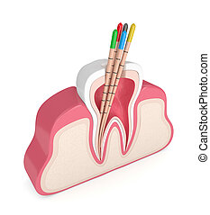 3d render of tooth in gums with gutta percha