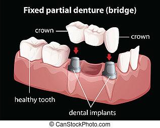 A fixed partial denture