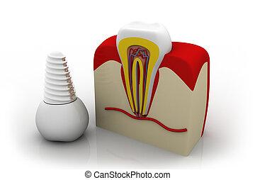 Anatomy of healthy teeth and dental implant in jaw bone