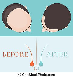 Top view of a man before and after hair treatment and hair transplantation. Implantation of hair. Hair care concept. Hair bulb logo. Hair loss clinic concept design. Isolated vector illustration.