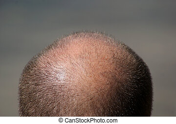Close up view of a balding man's head.