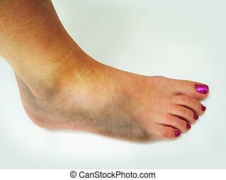 Bruised ankle