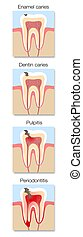 Caries Development Stages Cross Sections Tooth Decay
