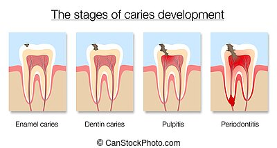 Caries Stages Development Tooth Decay Cross Sections