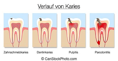Caries Stages German Names Development Tooth Decay Cross Sections