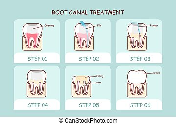cartoon tooth root canal treatment