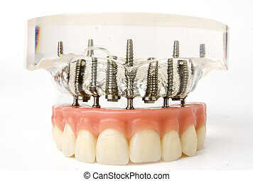 close up of teeth implant model