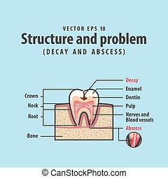 Decay and abscess cross-section structure inside tooth diagram and chart illustration vector on blue background. Dental concept.