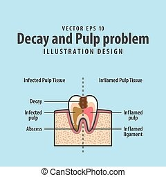 Decay and Pulp problem cross-section structure inside tooth diagram and chart illustration vector on blue background. Dental concept.