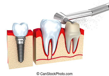 Dental crown , implant and teeth , 3d image .