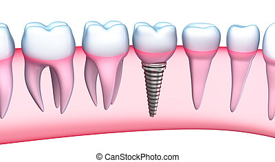 Dental Implant detailed view