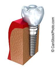Dental implant - education model . 3D render
