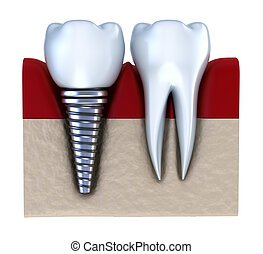 Dental implant - implanted in jaw