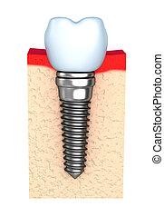 Dental implant in jaw bone