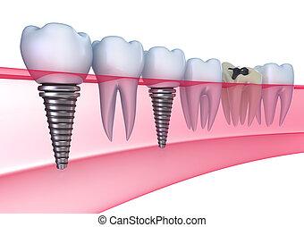 Dental implants in the gum