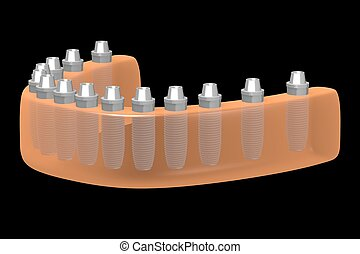 Dental implants/ teeth implants