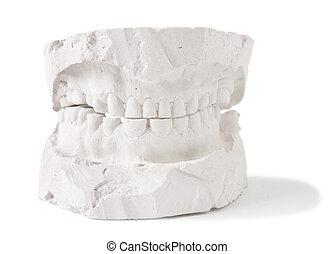 dental prostesis