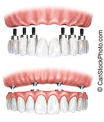 Image of a denture prosthesis