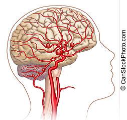 Descriptive illustration of the development of the human cerebral aneurysm.