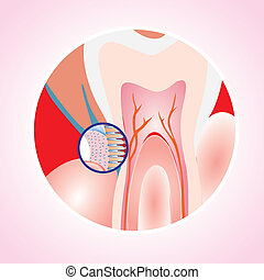 Detail of tooth decay - zoom in and close up - editable vector