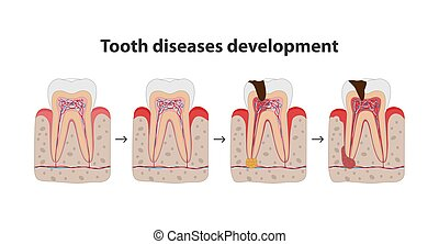 Development of tooth disease medical poster illustration in flat design. Teeth in gum icons isolated on white background.