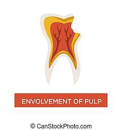 Envolvement of pulp dental disease mouth cavity dentistry