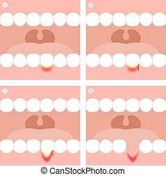 Gingivitis or Periodontitis illustration vector infographic