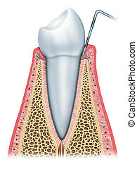 Gingivitis in the beginning with inflammation of the gum