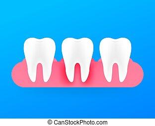 Gum disease, periodontitis. Healthy white tooth. Vector stock illustration.