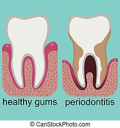 Gums periodontitis