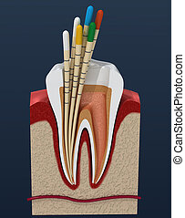 Gutta percha endodontics instrument, dental anatomy. 3D illustration