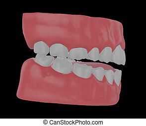 human jaw with straight teeth