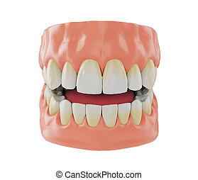 human jaw with yellowish teeth near the gums, correct bite, 3d render