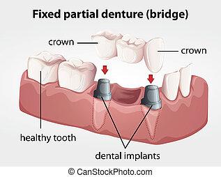 Illustration of a Fixed partial denture bridge