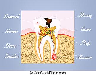 tooth scheme