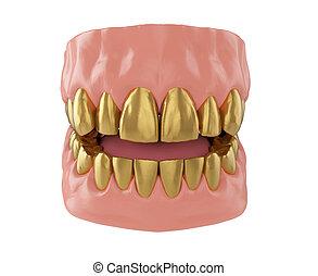 golden crown of a teeth
