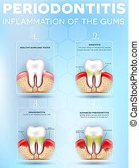 Periodontitis dental anatomy