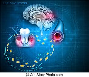 Periodontitis gum disease cause brain problems