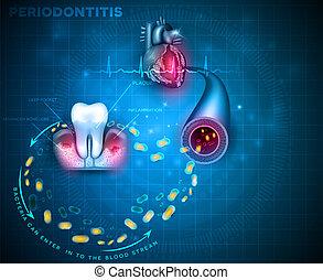 Periodontitis gum disease cause heart problems