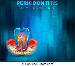 Periodontitis gum disease poster