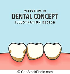 Periodontitis illustration vector on blue background. Dental concept.