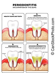 Periodontitis, inflammation of the gums, detailed illustration. Healthy tooth, Gingivitis and at the end advanced Periodontitis